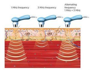 lechenie-s-ultrazwuk